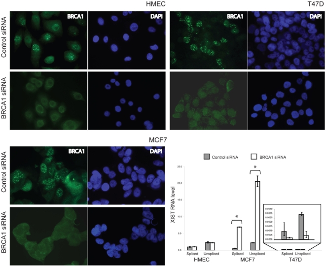 Effects of BRCA1 RNAi on XIST expression in cells with different XCI status. HMEC (XCI type 0), MCF7 (XCI type 1) and T47D (XCI type 2) were transfected with a mix of two BRCA1 -specific siRNAs, mapping to exons 12 and 24, or a control siRNA. After 72 hrs, cells were processed for BRCA1 immunofluorescence and RNA purification. In all panels BRCA1 is immunostained in green and nuclei are marked with DAPI. The histogram represents quantitative RT-PCR analysis performed on cDNAs of the indicated cell lines, before and after BRCA1 silencing, using primers specific for spliced and unspliced XIST RNA. XIST RNA levels are expressed as a ratio to GAPDH mRNA levels, after subtraction of the background signal from cDNA synthesis reactions lacking reverse transcriptase. To facilitate comparison between cell lines with different XCI status, the XIST / GAPDH transcript ratio was normalised relative to HMEC. Error bars represent standard deviation and the asterisks indicate statistically significant differences (p