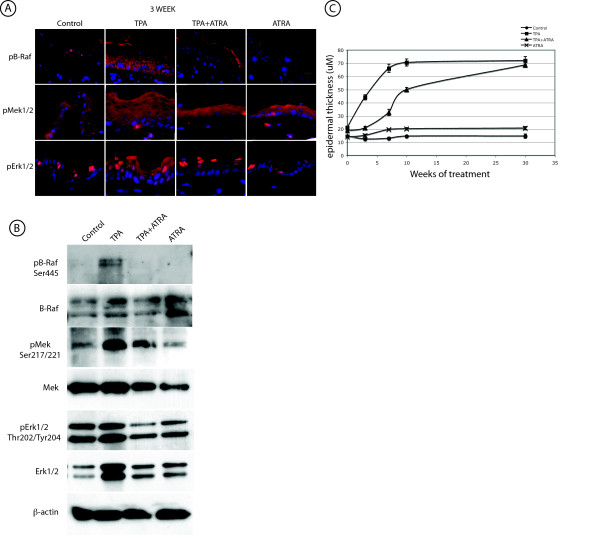 ATRA suppresses TPA induced phosphorylation of B-Raf, Mek1/2, and Erk1/2 . A . IHC staining of 3 week treated skin. Paraffin sections of mouse skin treated with Acetone (Control), TPA, TPA+ATRA, and ATRA alone were probed with pB-Raf, pMek1/2, and pERK1/2 antibodies followed by an Alexa-546-labeled secondary antibody. Sections were counterstaining with DAPI. All panels were photographed at 600× magnification. B . Epidermal lysates were prepared in RIPA buffer from SENCAR mouse skin treated with Acetone (Con), TPA, TPA+ATRA (T+A), or ATRA alone for 10 weeks. Total protein (15 μg per well) from pooled samples (n = 5) was run on 10% SDS-PAGE and probed with antibodies for total B-Raf, pB-Raf, total Mek1/2, pMek1/2, total Erk1/2, pERK1/2, and β-actin. C . Epidermal thickness during the time course. Thickness was measured from digital micrographs of H E stained skin sections as described in Methods. The symbols and error bars indicate the mean of 10 measurements ± SEM.