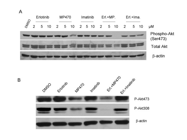 Effects of MP470, Erlotinib, and MP470-Erlotinib treatment on Akt activity . (a). LNCaP cells were treated with DMSO or different doses of Erlotinib, MP470, IM or combinations as indicated for 30 hr. Phospho(Ser473)-Akt and total Akt were detected by immunoblotting. β-actin antibody was used as the loading control. (b). LNCaP cells were grown in androgen-depleted medium, phenol red-free RPMI 1640 supplemented with 10% charcoal/dextran-treated FBS for 10 days. The cells were treated with 10 μM of Erlotinib, MP470, IM alone or Erlotinib plus MP470 and Erlotinib plus IM for 24 hr, and Akt phosphorylation was analyzed by Western blotting.