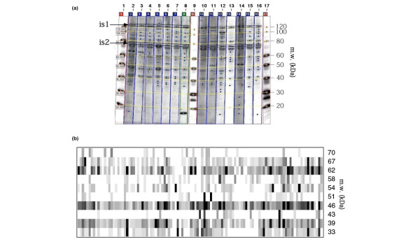 Detection of autoantibodies in rheumatoid arthritis patient sera. Autoantibodies in rheumatoid arthritis (RA) patient sera were detected by western blot analysis using HL-60 cell extract as the substrate. (a) Example of one-dimensional gel electrophoresis western blot analysis with Imagemaster totalLab software to determine the molecular weights (m.w.) of different bands using an internal standard (is1 and is2) that correspond to 120-kDa and 80-kDa proteins revealed by alkaline phosphatase-conjugated streptavidin. These bands were used for standardization between the different membranes. (b) Virtual blot of the 110 RA patient sera. The m.w. of the bands are indicated on the right-hand side of the figure. Each vertical lane corresponds to different RA patient sera.