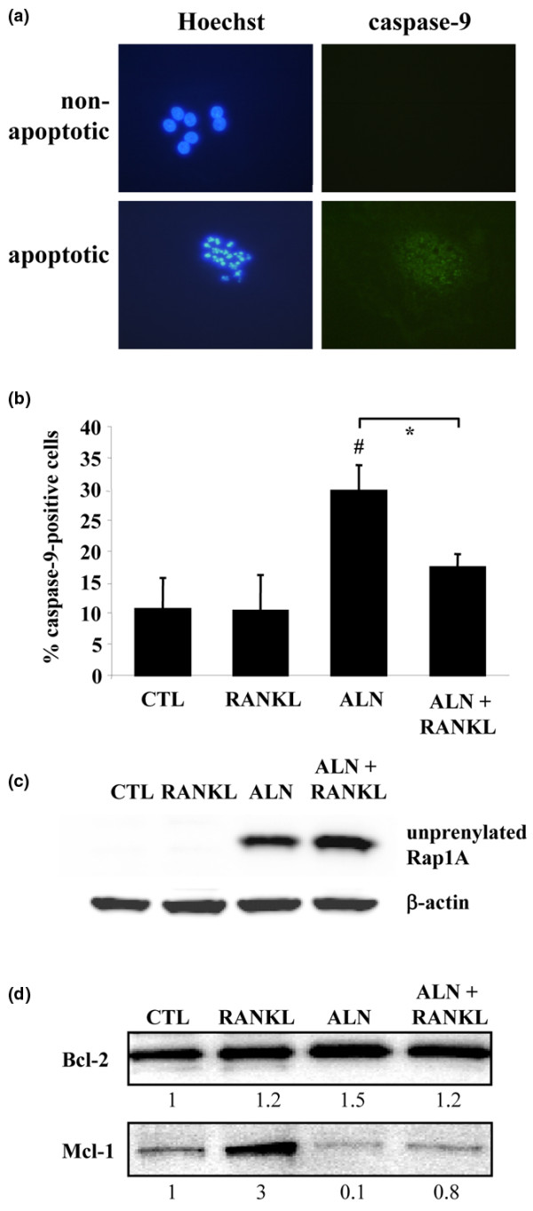 RANKL prevents activation of caspase-9 and increases Mcl-1 in osteoclasts but does not prevent inhibition of protein prenylation. Cultures of mature osteoclasts from rabbit bones were treated with 100 μM ALN ± 100 ng/mL RANKL for 48 hours and stained using an Apofluor Green Caspase-9 Activity Assay kit and Hoechst 33342. (a) A representative non-apoptotic and apoptotic osteoclast. (b) Quantification of caspase-9-positive osteoclasts after treatment with alendronate ± RANKL for 48 hours. * P ≤ 0.05 compared with ALN alone or # P ≤ 0.05 compared with control (CTL) (analysis of variance). Values are the mean ± standard error of the mean (n = 3 replicates) (100 to 150 cells counted per well). The data shown are representative of three independent experiments. (c) Purified rabbit osteoclasts were treated for 48 hours with 100 μM ALN ± 100 ng/mL RANKL or with RANKL alone. Cell lysates were then analysed by Western blotting for the unprenylated form of Rap1A and for β-actin. (d) Purified rabbit osteoclasts were treated for 48 hours with 100 μM ALN ± 100 ng/mL RANKL or with 100 ng/mL RANKL alone. Cell lysates were then analysed by Western blotting for Mcl-1 and Bcl-2. The level of Mcl-2 or Bcl-2 was quantified by densitometric analysis and expressed as a ratio of the level in control cells. Data shown are representative of three independent experiments. ALN, 4-amino-1-hydroxy-butylidene-1,1-bisphosphonate (alendronate); RANKL, receptor activator of nuclear factor-kappa-B ligand.