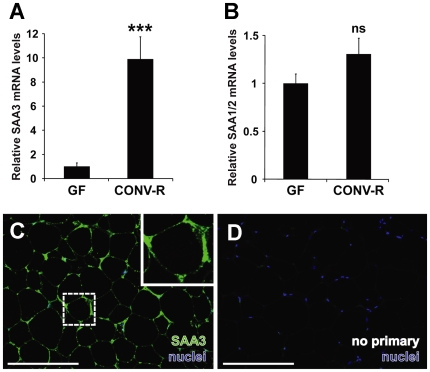 SAA3 but not SAA1/2 mRNA expression is increased in mouse adipose tissue in the presence of microbiota. (A) qRT-PCR analysis of SAA3 mRNA expression levels in epididymal adipose tissue of germ-free (GF) and conventionally raised (CONV-R) mice (n = 10 mice per group). (B) qRT-PCR analysis of SAA1/2 mRNA expression levels in epididymal adipose tissue of germ-free (GF) and conventionally raised (CONV-R) mice (n = 10 mice per group). Data are means±SEM. *** P