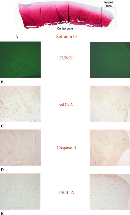 Photomicrographs (Stain, Safranin O ( A ) and DAB primary antibody staining with Fast Green counter stain ( B – E ); original magnification, ×10) compare ( A ) the injured zone and the control zone in ( B ) TUNEL, ( C ) ssDNA, ( D ) anti-active caspase-3, and ( E ) ISOL. The break in the cartilage is to the right of the injured zone images. TUNEL = terminal deoxynucleotidyl transferase end labeling; ssDNA = DNA denaturation analysis using anti single-stranded DNA antibody; ISOL = in situ oligonucleotide ligation.