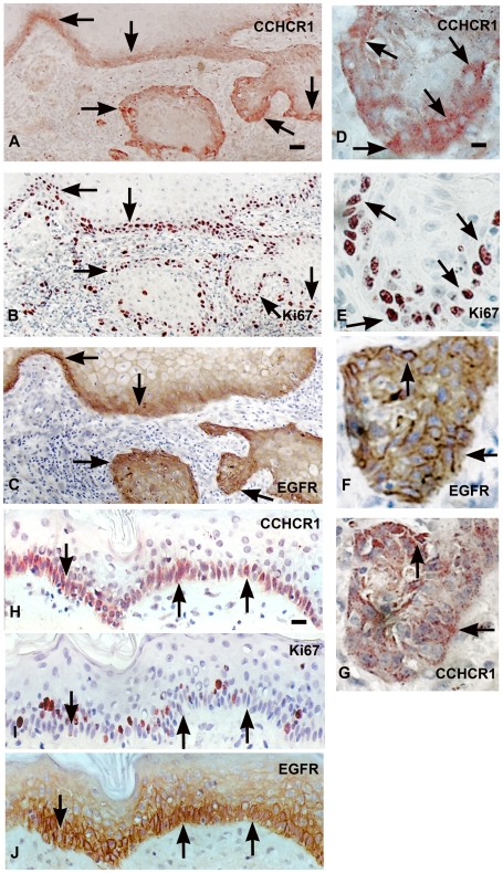 CCHCR1, Ki67, and EGFR are coexpressed in grade I SCC and in normal skin. Serial sections of grade I SCC (A–C) and normal skin (H–J) were immunostained with antibodies against CCHCR1, Ki67, and EGFR. Higher magnifications of A–C are also shown (D–F, respectively). CCHCR1 staining (G) in an adjacent section to EGFR staining (F). CCHCR1 protein (A) is expressed in proliferative cancer cells at the invasive front of dermal cancer cell islands of an SCC in association with the hyperproliferation marker Ki67 (B) and EGFR (C). The Ki67 positive cells (E) express CCHCR1 (D). EGFR staining (F) associates with CCHCR1 staining (G) in adjacent sections. Normal skin samples express CCHCR1 (H) and EGFR (J) in basal KCs, while Ki67 expression (I) is more sparse. Arrows point at illustrative positions. Scale bars: (A–C) 50 µm; (D–G) 12.5 µm; (H–J) 25 µm.