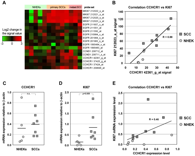 CCHCR1 mRNA expression in normal keratinocytes and SCC cell lines correlates with Ki67 expression. A) Ki67, EGFR, cyclin-D1 and CCHCR1 gene expression profile of five normal epidermal KC and eight cutaneous SCC cell lines (heatmap). Signal values of the probe sets were compared to the mean signal values of each probe set in KCs. The colouring is based on the log2 values of the change in the signal values. The up-regulated genes are shown in red and down-regulated genes are shown in green. B) Correlation between CCHCR1 and Ki67 probe sets was calculated between the signal values of one CCHCR1 and one Ki67 probe set in the HG-U133 Plus 3.0 array. Pearson's correlation coefficient R = 0.88. C) CCHCR1 and D) Ki67 mRNA expression levels in the normal KCs and cutaneous SCC cell lines as measured by qRT-PCR (TaqMan). Expression levels of CCHCR1 and Ki67 in the normal KCs and SCC cell lines were analyzed by qRT-PCR and corrected for the β-actin mRNA levels in the same samples. E) Correlation between CCHCR1 and Ki67 probe sets was calculated between the signal values of CCHCR1 and Ki67 mRNA levels. Pearson's correlation coefficient R = 0.46.