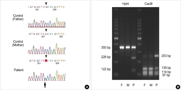 Mutation analysis of the ACVR1 in FOP patients with definite clinical manifestations. ( A ) Direct sequencing of the PCR products of the ACVR1 showed the presence of the c.617G > A mutation. R=adenine or guanine, ( B ) Restriction endonuclease digestion of the PCR product (350 bp). The G allele (control) was digested by Cac8I to produce three bands, whereas the A allele appeared as two bands. Because FOP patients were heterozygous for this mutation, the 139 bp and 114 bp bands were also presented. The PCR product not digested with HphI corresponds to the G allele (control) in contrast to digested products corresponding to the A allele (FOP).