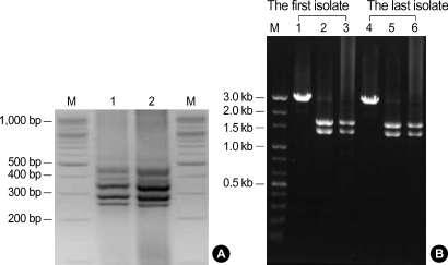PCR products and restriction patterns of C. difficile ribotype 027 isolates from the patient. ( A ) Identical PCR ribotype profiles obtained from both the first and the last isolates. Lanes: M, 100 bp DNA ladder; 1, the last isolate; 2, the first isolate. ( B ) Types of restriction patterns by B1 and A3 PCR showing toxinotype III. Lanes: M, DNA size marker; 1, 4, Acc I restriction patterns of B1 fragment; 2, 5, Hinc II restriction patterns of B1 fragment; 3, 6, EcoR I restriction patterns of A3 fragment.
