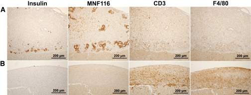 Histological examination of E42 pig pancreatic tissue 2 weeks after transplantation under the renal capsule of C57BL with ( A ) and without ( B ) immune-suppression with costimulatory blockade (anti-LFA1, anti-CD48, and CTLA4-Ig), FTY720, and T-cell debulking. Slides were stained for pig insulin, cytokeratin (MNF116), CD3 + lymphocytes, and macrophages (F4/80), as indicated. (A high-quality representation of this figure is available in the online issue.)