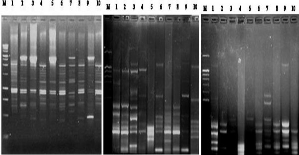 Representative 2% agarose gels of <t>RAPD-PCR</t> patterns generated from 10 liver samples using three arbitrary primers: EZ: left, Chi 15 : middle and P 53 F: right . Lane M: <t>DNA</t> marker 1 kb Ladder, lane 1: control animal, lanes 2–5: NDEA-treated animals and lanes 6–10: NDEA+Q-treated animals.