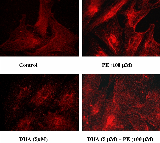 Effect of PE and DHA on PKCα translocation in cardiomyocytes. Cardiomyocytes were treated with PE and DHA as described in the legend of Figure 1 . Proteins were detected using anti-PKCα specific antibody and visualized with Alexa 546- (red fluorescence) labelled anti-mouse as described in the Material and Methods section. Cells were examined under a fluorescence microscope and images were captured using a MagnaFire digital camera (Optronics) for analysis. Results are a typical representation of three experiments.