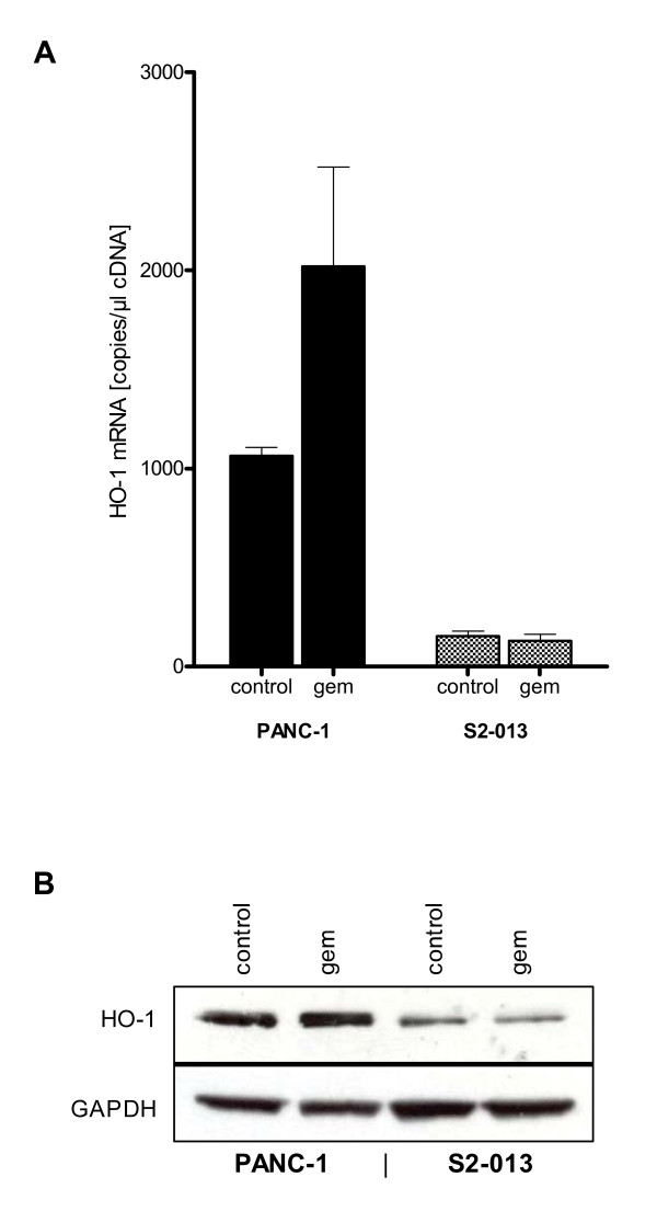 Pancreatic cancer cell lines PANC-1 and S2-013 show divergent HO-1 expression levels . mRNA extractions from cells for QRT-PCR and cell lysates for Western blot were prepared from untreated cells and cells treated with gemcitabine. (1A) No treatment of PANC-1 cells displayed high native mRNA expression of HO-1, whereas HO-1 expression was only at levels of detection in S2-013. Treatment with gemcitabine increased mRNA expression of HO-1 in PANC-1 cells but did not alter the expression level in S2-013 cancer cells. (1B) Protein analyses in resting condition revealed high native expression of HO-1 in PANC-1 but faint expression in S2-013. Under gemcitabine conditions protein expression of HO-1 was slightly induced in PANC-1 cell line but did not alter HO-1 protein expression in S2-013 cell line.