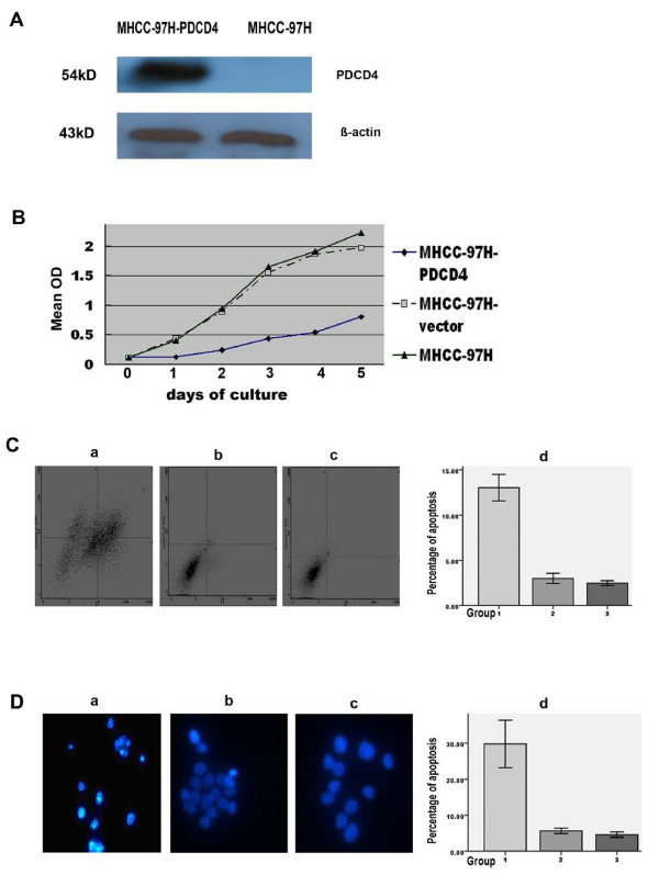 Effects of PDCD4 on MHCC-97H cell proliferation and apoptosis . A: Western blot analysis for identification of transfection efficiency. B: MTT assay for cell proliferation. C: Flow cytometric assay for cell apoptosis. D: Hoechst 33258 staining for cell apoptosis (×200). Morphological changes of cell apoptosis were shown as chromatin condensation and nuclear fragmentation. Representative images are shown from three individual experiments. In C and D, a or Group1, b or Group 2, and c or Group3 represents cells of MHCC-97H-PDCD4, MHCC-97H-vector and MHCC-97H, respectively; d shows statistical analysis for each assay. Bars represent the means ± SD. The difference between Group1 and Group2 or Group3 was significant (P