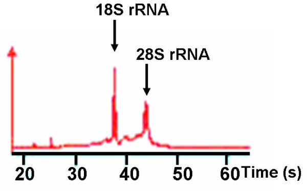 Representative electropherogram of total RNA extracted from pancreatic cancer obtained by endoscopic ultrasound-guided fine-needle aspiration biopsy . The ratio of <t>28S</t> to 18S of ribosomal RNA indicates good quality of total RNA.