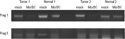 McrBC PCR of two different fragments of the MTSS1 CpG island for tumors identified of having methylation of this island compared to matched normal samples. Fragment 1 encompasses the MspI fragment we have identified as being methylated and overlaps the gene TSS. Fragment 5, we do not detect methylation. Both Normal and Tumor were digested with McrBC or mock digested for both matched pairs.