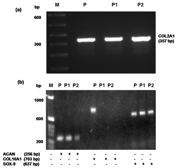 Human osteoarthritis chondrocytes in monolayer culture maintain their phenotype. Primary chondrocytes from osteoarthritis patients were cultured for 72 hours and were then split and cultured for an additional 3 days (passage 1). Expression of (a) type-2 collagen (COL2A1) and (b) aggrecan (ACAN), type-10 collagen (COL10A1) and SRY-box containing gene 9 (SOX-9) was determined by RT-PCR. M, 100 bp DNA ladder; P, positive control cDNA; P1, primary chondrocytes; P2, passage 1 chondrocytes.