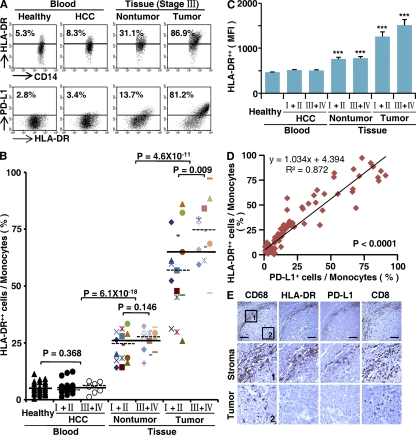 Expression pattern of PD-L1 was correlated with the activation pattern of monocytes/Mφ in peritumoral stroma. (A–C) FACS analysis of PD-L1 and HLA-DR expression in fresh monocytes isolated from peripheral blood and tissues. Representative data on PD-L1 + HLA-DR high monocytes (A), percentages of HLA-DR high CD14 high monocytes (B), and the MFI of HLA-DR in HLA-DR high CD14 high monocytes (C) are shown. The samples collected and the numbers of donors in A–C were the same as in Fig. 1 . The data shown in A are representative dot plots of at least seven individuals from more than five independent experiments; B and C show the statistics analysis of these samples. The continuous and dashed horizontal bars in B represent median values. Results are expressed as means ± SEM. (D) Positive correlations between the levels of PD-L1 + and HLA-DR high monocytes. The samples used in D were blood from healthy individuals, HCC patients, and paired nontumor and tumor tissues from HCC patients ( n = 28 for each). (E) Adjacent sections of paraffin-embedded hepatoma samples stained with the indicated markers. The micrographs at higher magnification show the peritumoral stroma region (1) and a cancer nest (2). Significant difference compared with healthy blood is indicated (***, P