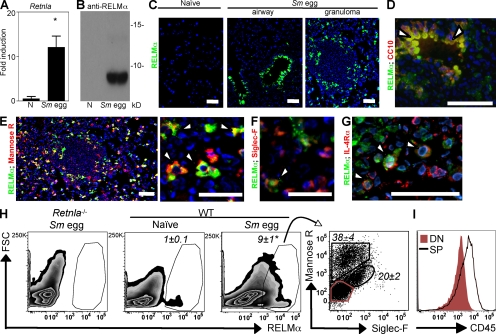 RELM-α is expressed after Sm egg challenge. (A) Lung Retnla expression in naive and Sm egg-challenged C57BL/6 mice. *, P