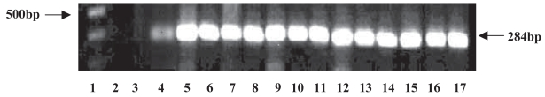 Nested PCR for WT1 expression.