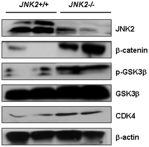 JNK2 deficiency caused upregulation of β-catenin and its downstream target CDK4, as well as upregulation of GSK3β phosphorylation in JNK2-/- mouse intestinal epithelial cells, compared to those in JNK2+/+ mice. Each lane represents one mouse. β-actin served as loading control.