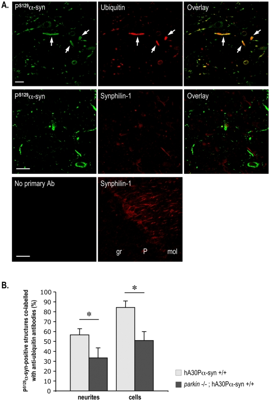 The frequency of P S129 -α-synuclein-positive structures immunolabelled with anti-ubiquitin antibodies is lower in the absence than presence of Parkin. (A) Confocal scanning laser micrographs of a brainstem section from a representative symptomatic hA30Pα-syn mouse illustrating colocalization of ubiquitin staining with P S129 -α-synuclein-positive deposits (top panel). Note that ubiquitin was present in most of the swollen P S129 -α-synuclein-positive neurites (arrows). Synphilin-1-immunoreactivity was not found within the P S129 -α-synuclein-positive deposits (middle panel), whereas it was detected in nerve processes in a representative region of the cerebellum (lower panel). gr: granular cell layer; P: Purkinje cell layer; mol: molecular cell layer. Scale bars indicate 25 µm. (B) Percentage of P S129 -α-synuclein-immunopositive neurites and cell bodies co-labelled for ubiquitin in a representative region of the brainstem of symptomatic hA30Pα-syn mice with or without Parkin (n = 4–5). *, p