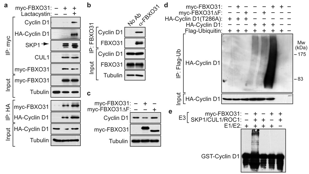 FBXO31 interacts with and directs ubiquitination of cyclin D1. a , Co-immunoprecipitation of FBXO31 with cyclin D1 and SCF complex components. The FBXO31-cyclin D1 interaction was specific ( Supplementary Fig. 18 ) and predominantly cytoplasmic ( Supplementary Fig. 19 ). b , Co-immunoprecipitation of endogenous FBXO31 and cyclin D1. c , Cyclin D1 levels in SK-MEL-28 cells ectopically expressing vector, FBXO31 or FBXO31ΔF. d , In vivo ubiquitination assay. Polyubiquitinated cyclin D1 was detected by immunoprecipitation of Flag-tagged ubiquitin followed by immunoblotting for HA-cyclin D1. e , In vitro ubiquitination assay. Immunopurified SCF complexes were incubated with GST-cyclin D1, Erk2, E1, E2, ATP and ubiquitin.