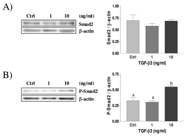Expression of Smad2 (A) and Phospho-Smad2 (B) in cultured rat decidual cells in vitro in response to TGF-β3 (ng/ml) as demonstrated by Western blot analysis . β-actin blots shown were used as controls to correct for loading in each lane. Blots shown are from one representative experiment. Graphics represent Western blot densitometrical analysis. Data represent the mean ± SEM of four independent experiments. Columns with different letters are significantly different from each other (P