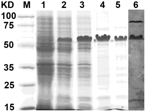 SDS-PAGE analysis of different samples taken during the purification process of esterase LipC. Lane 1: crude supernatant of pET28a-LipC non-induced culture; Lanes 2 and 6: crude extract of induced culture; Lane 3: purification on Ni-NTA affinity Sepharose column; Lane 4: further purification with DEAE column; Lanes 5 and 6: further purification with Sephadex-G200. Lanes 1 to 5 were stained with Coomassie Brilliant Blue and Lanes 6 was stained with α-naphtyl acetate and Fast Blue for the detection of hydrolase activity.