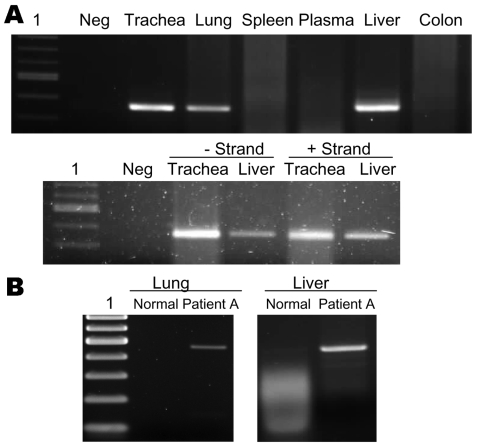 A) Detection of viral RNA in lung, trachea, and liver by reverse transcription–PCR (RT-PCR) (upper panel) and detection of positive- and negative-stranded viral RNA in trachea and liver by strand-specific RT-PCR (lower panel). Lane 1, 100-bp ladder; Neg, negative. B) RT-PCR showing overexpression of tumor necrosis factor-α in lung and liver tissues of patient in A compared with normal tissues.