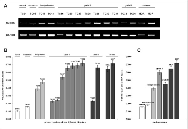 Semi-quantitative mRNA expression of NUCKS in primary cultures from different biopsies . (A) The RT-PCR products, generated with NUCKS and GAPDH gene specific primers, were electrophorized in a 2% agarose gel. GAPDH mRNA was used as an internal control. The most representative cases are illustrated. (B) Graphical presentation of the ratio of NUCKS to GAPDH mRNA levels corresponding to the samples illustrated in (A), as median values of 3 independent experiments (p = 0.05). The mRNA levels were quantitated semiquantitatively as described in the Methods section. TC01, primary culture of normal tissue; TC05, primary culture of fibroadenoma; TC11 and TC13, derived from primary cultures from biopsies with benign epithelial proliferations; TC16, TC20, TC27-TC31 derived from primary cultures from IDC, grade II biopsies; TC32 and TC36 derived from IDC, grade III. The clinicopathological variables of the samples are summarized in Additional file 1 . MDA MB-231 and MCF-7 represent cell lines used as a positive control for NUCKS expression. (C) Median values of the ratio of NUCKS to GAPDH mRNA levels in the studied groups (p = 0.05).
