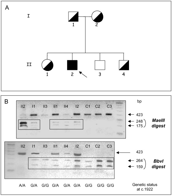 Segregation of the c.1922G > A MANBA mutation in the family . A, Family pedigree. The arrow denotes the proband. Genetic status for the c.1922G > A mutation is indicated by black and white symbols. B, Restriction enzyme analysis of exon 14 in the patient, his family and three control subjects (denoted C1 to C3). PCR-amplified exon 14 (a 423 bp fragment) was digested with <t>MaeIII</t> or <t>BbvI</t> and analyzed by gel electrophoresis.