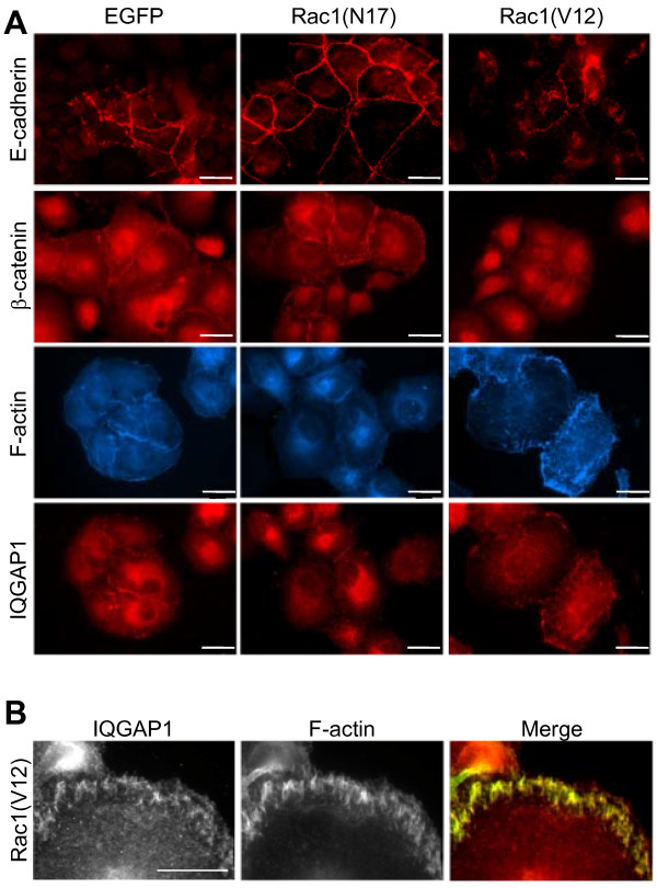 Immunofluorescence localisation of E-cadherin, β-catenin, IQGAP1 and filamentous actin (F-actin) . (A) PANC-1 cells stably expressing EGFP, EGFP-Rac1(V12) or EGFP-Rac1(N17) were incubated with specific antibodies against E-cadherin, β-catenin, IQGAP1 or CPTIC-conjugated phalloidin. The staining was examined by fluorescence microscopy (bar = 20 μm). (B) EGFP-Rac1(V12)-expressing PANC-1 cells were stained for IQGAP1 and F-actin with CPTIC-conjugated phalloidin. The merged image shows in yellow the colocalisation of IQGAP1 and filamentous actin (bar = 10 μm).