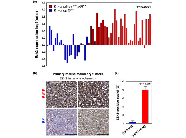 Ezh2 expression is elevated in BRCA1-deficient primary mouse mammary tumors. (a) mRNA levels of Ezh2 in BRCA1-deficient ( K 14cre; B rca 1 F / F ; p 53 F / F (KB1P)) and BRCA1-proficient ( K 14cre;Brca1 w . t / w . t ; p 53 F / F (KP)) mammary tumors analyzed by microarray analysis. The mean (± standard error of the mean) log2 ratio of Ezh2 expression in 21 KP tumors is -0.036 (± 0.067) and 0.497 (± 0.054) in 32 KB1P tumors. The Ezh2 expression is significantly higher in KB1P tumors compared with KP tumors (*Wilcoxon exact test). (b) EZH2 protein levels in two independent primary KB1P and in two independent primary KP tumors detected by immunohistochemistry (scale bar represents 100 μm), representative of a total of four tumors analysed for each genotype. (c) Quantification of EZH2 immunohistochemistry shown in b (* Wilcoxon exact test).
