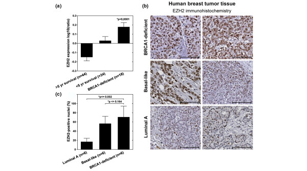 EZH2 is overexpressed in BRCA1-deficient human breast tumors. (a) The mean (± standard error of the mean) log10 ratio of EZH2 expression in human breast cancer samples [ 45 ] is -0.15 (± 0.041; > five-year survival, good prognosis), 0.028 (± 0.046;
