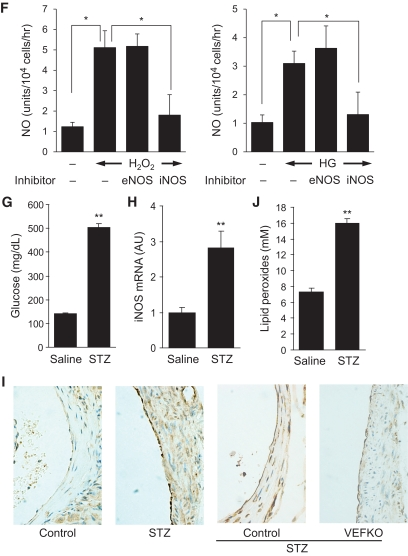 iNOS-dependent NO and ROS/peroxynitrite generation in response to high glucose or oxidative stress in HAECs and in mice. A–F : HAECs were incubated in medium containing 5.5 mmol/l glucose (–), 25 mmol/l glucose (HG) or 25 mmol/l mannitol (Man) for 48 h, or H 2 O 2 (0.15 or 0.5 mmol/l) for 12 h with ( E and F ) or without ( A–D ) either iNOS (1400W) or eNOS inhibitors ( l -NAME). A , C , and F : Representative images ( upper panel s) and calculated relative intensities ( lower panel s) of NO production using DAF2-DA. B : ROS/peroxynitrite production using carboxy-H 2 DCFDA. D and E : iNOS and eNOS protein ( upper panel ) and mRNA ( lower panel ) expression. G : Blood glucose, ( H ) aortic iNOS mRNA expression, ( I ) iNOS immunohistochemistry in aortic sections from C57BL/6J mice (first and second panel from the left) and from Tie2-cre/ Foxo1 flox/flox and Foxo1 flox/flox mice (third and fourth panel from the left), and ( J ) plasma lipid peroxide levels (TBARS) in STZ-induced diabetic and saline-treated control mice ( n = 6 for each group). The data were obtained two weeks after STZ injection. * P