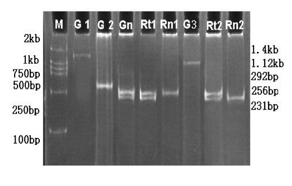 Imprinting analysis of IGF2 in gastric cancer . DNA (G1) and RT-PCR (G3) amplification using primers P1 and P3 and DNA amplification by PCR with primers P2 and P3 (G2) represented 1.4 kb, 1.12 kb and 292 bp respectively (see details in methods section). G1, G2 and G3 are PCR products of the same normal tissue. ApaI- and HinfI-digested normal tissue DNA PCR (Gn) from primers P2 and P3 displayed two bands of 256 and 231 bp indicating heterozygosity. The digested nested PCR product from primers P2 and P3 using the 1.12 kb RT-PCR product as a template showed monoallelic expression of IGF2 in normal (Rn1, Rn2) and biallelic expression in tumor (Rt1, Rt2) tissues.