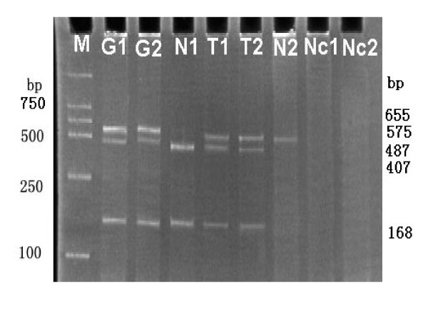 Imprinting analysis of H19 in gastric cancer . H19 heterozygosity showed 655 bp DNA PCR product yielded bands of 487 and 168 bp by RsaI digestion (G1, G2). Normal tissues (N1, N2) showed only one allele expression indicating maintenance of normal imprinting (displayed 407 and 168 bp, 575 bp respectively by RsaI digestion RT-PCR products). T1, T2 displayed both three bands (575, 407 and 168 bp respectively) in tumor tissues indicating loss of imprinting in contrast to their matching normal tissues (N1, N2). M, marker DL2000. Nc1, Nc2 represented RT-PCR without reverse transcriptase.