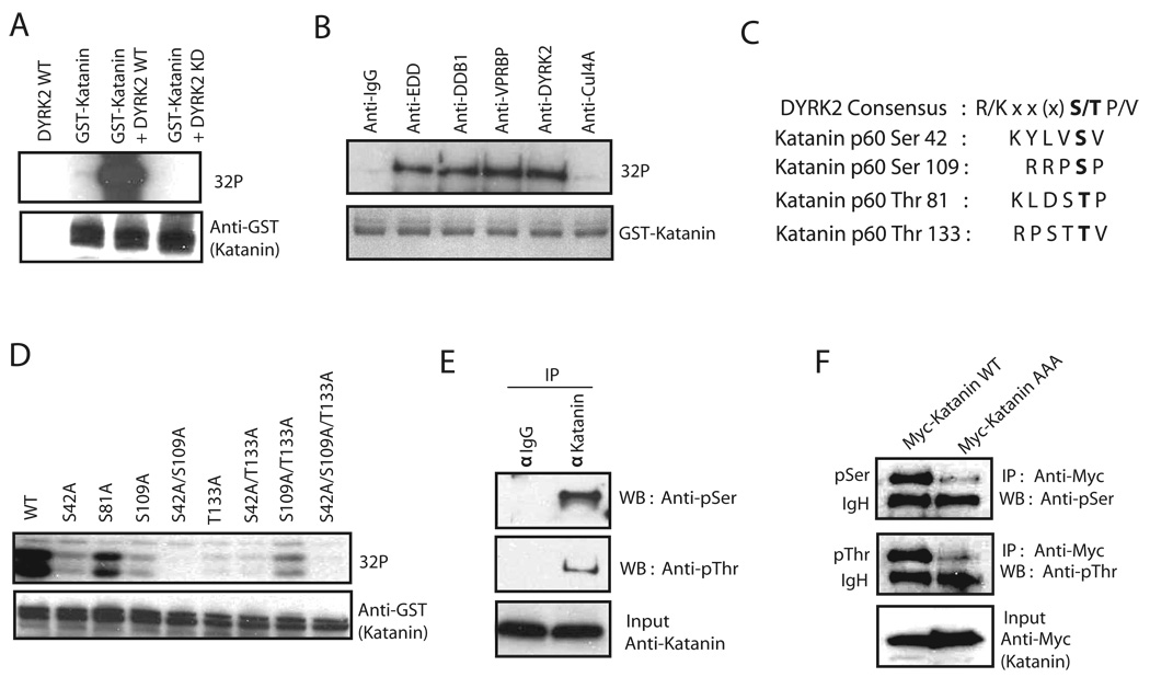 DYRK2 phosphorylates Katanin (a) An in vitro kinase assay was performed with a bacterial expressed GST-Katanin and immunoprecipitated wild-type or Kinase inactive DYRK2. (b) An in vitro kinase assay was performed with a bacterial expressed GST-Katanin with immunoprecipitates prepared by using EDD, DDB1, VPRBP, DYRK2 and Cul4A antibodies. (c) The alignment of potential Katanin phosphorylation sites with DYRK2 consensus sequence is presented. Bold lettering indicates the phosphorylated residue. (d) In vitro DYRK2 kinase assays were conducted using different bacterially expressed GST-Katanin phosphorylation site mutants as indicated. (e) The in vivo phosphorylation of Katanin was detected by immunoblotting with anti-phospho-serine or anti-phospho-threonine specific antibodies following immunoprecipitation using control IgG or Katanin antibodies. (f) The in vivo phosphorylation of wild-type Katanin and the phospho Katanin mutant (AAA) was assessed by immunoblotting with phospho-serine or phospho threonine antibodies following anti-Myc immunoprecipitation of extracts prepared from 293T cells expressing Myc-tagged wild-type or mutant Katanin. IgH indicates IgG heavy chain.