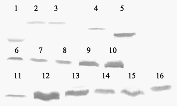 Western blot analysis of the recombination proteins . Identification of the expression of the His-tagged recombinant proteins in E. Coli DH5α by Western blot. 1, DHFR; 2, rHMGB1 A box; 3, rHMGB1 B box; 4, rHMGB1; 5, tHMGB1; 6, mHMGB1 -211-215; 7, mHMGB1- 206-215; 8, mHMGB1 -201-215; 9, mHMGB1 -196-215; 10, mHMGB1 -191-215; 11, mHMGB1 -186-200; 12, mHMGB1 -196-210; 13, mHMGB1 -196-205; 14, mHMGB1 -198-207; 15, mHMGB1 -201-210; 16, mHMGB1 -201-205.