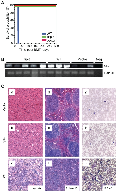 BCR-ABL triple mutant fails to induce leukemia in mice. Murine bone marrow transplantation studies were performed, transplanting bone marrow infected with retroviral supernatant from MIG-BCR-ABL-wild type, MIG- BCR-ABL-triple mutant or MIG vector alone, into lethally irradiated recipients. Mice were monitored post transplant for signs of disease onset. (A) Survival curves for the three recipient populations. (B) Green fluorescent protein (GFP, upper panel) or glyceraldehyde-3-phosphate dehydrogenase (GAPDH, lower panel) was amplified by RT-PCR from RNA purified from spleens of triple mutant, wild type or vector only recipients and visualized on agarose gels. (C) H E stain from the liver (a–c), spleen (d–f) and Wright/Giemsa stain from peripheral blood smear (g–i) of representative mice at harvest; vector only (upper panels), triple mutant (center panels) and wild type (lower panels).