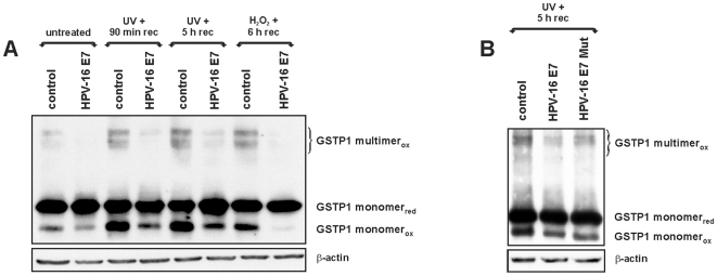 HPV-16 E7 influences the balance between oxidized and reduced GSTP1. A: Western blots for GSTP1 after non-reducing SDS-PAGE in control and in HPV-16 E7-infected HaCaT cells under normal conditions (untreated) or after induction of oxidative stress by exposure to UV (UVB, 5 mJ/cm 2 for 1 min) or hydrogen peroxide (0.5 mM H 2 O 2 for 30 min). In the first case, detection was performed after a 90 min or 5 h recovery period, while in the second case detection was performed after a 6 h period. In all cases, HPV-16 E7 expression was accompanied by a drastic decrease in the GSTP1 oxidized multimeric form (GSTP1 multimer ox ) and of the lowest band, which represents the oxidized GSTP1 monomer (GSTP1 monomer ox ). GSTP1 monomer red denotes the reduced form. B: Western blots for GSTP1 after non-reducing SDS-PAGE in control, HPV-16 E7- and HPV-16 E7 Mut-infected HaCaT cells after exposure to UV (UVB, 5 mJ/cm 2 for 1 min) and 5 h recovery. The mutant oncoprotein appeared less efficient in protecting GSTP1 from oxidation. In both panels, blots were normalized against β-actin levels that were determined in matching gels run under reducing conditions.