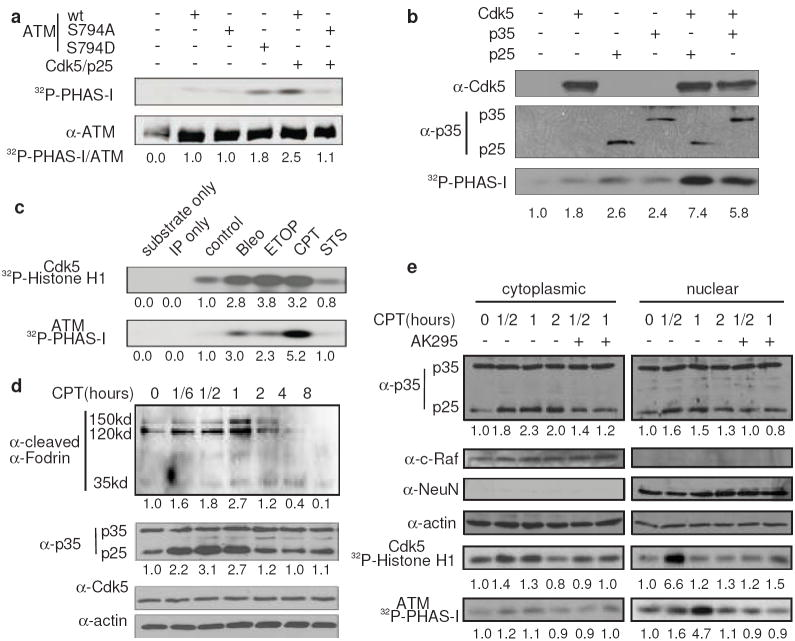 Activation of <t>Cdk5</t> by calpain contributes to <t>DNA</t> damage-induced ATM activation ( a ) Activation of ATM by Cdk5 mediated phosphorylation. HEK293 cells were transfected with Cdk5/p25 and ATM (wt, S794A and S794D mutants) as indicated. After 24 hours, ATM kinase activity was measured. The bottom panel shows the equal expression of ATM used in the lysates. The numbers are relative values with control set to one (same hereafter). ( b ) Activation of endogenous ATM by Cdk5/p25 or Cdk5/p35. Cdk5, p25 and p35 were overexpressed in HEK293 cells as indicated. After 24 hours, the levels of overexpressed proteins (top two panels) and ATM kinase activities (bottom panel) were determined. ( c ) Activation of Cdk5 and ATM by DNA damage. CGNs were treated with 10 μM camptothecin (CPT), 10 μM etoposide (Etop), 100 μg ml-1 bleomycin (Bleo), or 2 μM stausporine (STS) for 1 hour. Cdk5 and ATM kinase activity were measured using Histone H1 and PHAS-I as substrate, respectively. ( d ) CPT-induced p35 degradation. CGNs were treated with 10 μM CPT for the indicated periods of time. Level of cleaved α-fodrin, p35, p25 and Cdk5 were measured by immunoblotting. ( e ) Effects of inhibiting calpain on DNA damage-induced Cdk5 and ATM activation. CGNs were treated with or without 50 μM calpain inhibitor AK295 for 30 min and then with 10 μM CPT for the indicated periods of time. Cytoplamic and nuclear lysates were used for the determination of the levels of p35 and p25, and Cdk5 and ATM kinase activities. The membranes were reprobed for c-Raf, NeuN and actin as cytoplasmic fraction, nuclear fraction and loading controls, respectively.