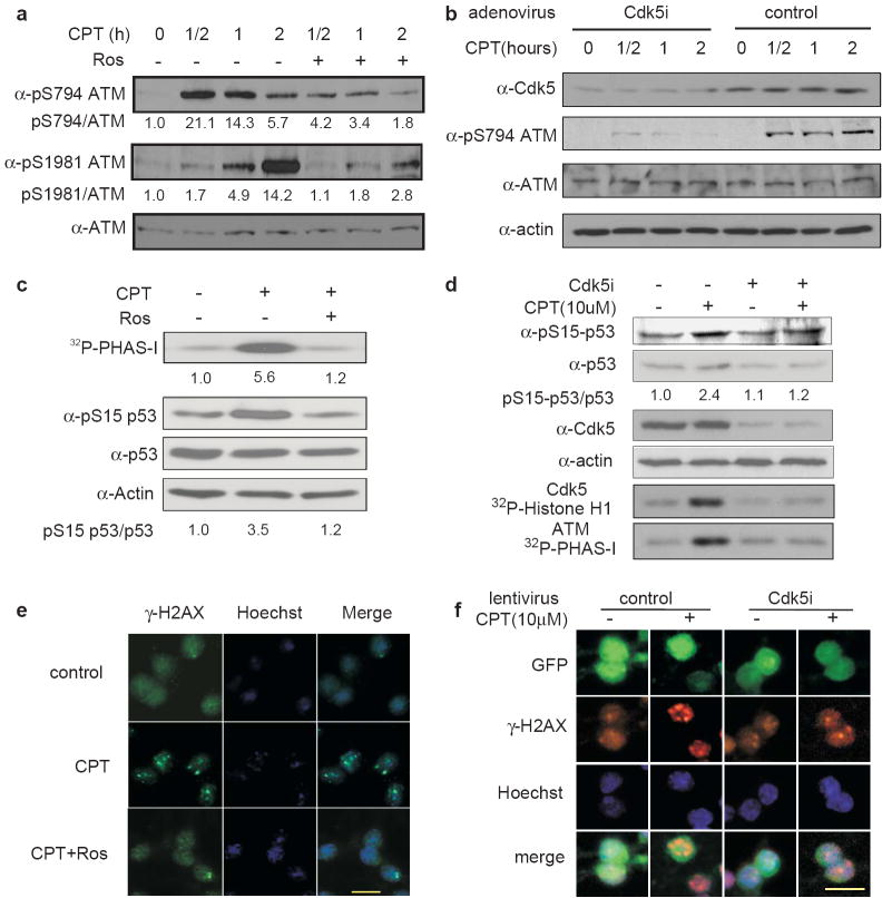 Inhibition of Cdk5 blocks DNA damage-induced phosphorylation and activation of ATM and its effects on downstream targets ( a ) Inhibition of CPT-induced ATM phosphorylation at S794 and S1981 by roscovitine. Neurons differentiated from SH-SY5Y cells were pretreated with or without 10 μM roscovitine (Ros) for 30 min and followed with 10 μM CPT for the indicated periods of time. Phospho-S794, phospho-S1981 and total ATM were determined by immunoblotting. ( b ) Inhibition of CPT-induced ATM phosphorylation at S794 and S1981 by knocking down Cdk5. Neurons differentiated from SH-SY5Y cells were infected with control or Cdk5 RNAi adenovirus for 24 hours, and then treated with 10 μM CPT for the indicated periods of time. Cdk5, phospho-S794, phospho-S1981, total ATM and actin were determined by immunoblotting. ( c ) Inhibition of CPT-induced ATM activation and p53 phosphorylation by roscovitine. CGNs were treated with or without 10 μM Roscovitine for 30 min and then with 10 μM CPT treatment for 1 hour. ATM kinase activity, phospho-S15, total p53 and actin were measured in the same set of lysates. ( d ) Inhibition of CPT-induced ATM activation and p53 phosphorylation by knocking down Cdk5. CGNs were infected with Cdk5i or scrambled RNAi lentivirus for 72 hours and then treated with 10 μM CPT treatment for 1 hour. Cdk5 and ATM kinase activities and levels for Cdk5, phospho-S15, total p53 and actin were measured in the same set of lysates. ( e ) Reduction of CPT-induced γ-H2AX foci formation by roscovitine. CGNs were treated with or without 10 μM Roscovitine (Ros) for 30 min and then exposed to 10 μM CPT for 1 hour. γ-H2AX (green) was detected by immunocytochemistry, and nuclei were labeled with Hoechst (blue). The average numbers of foci/cell counted blindly are control, 0.26; CPT, 3.91; CPT+Ros, 1.08 (p