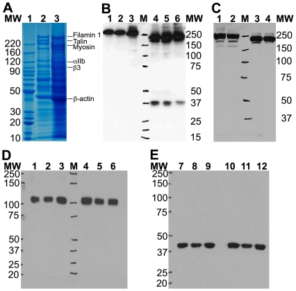 Platelets stored without citrate buffer show Talin degradation upon thawing. A. Coomassie stained 4–12% Bis-Tris SDS-PAGE gel shows selective degradation of Talin in lysates from platelet pellets stored in the absence of citrate buffer (Lane 3) Vs no degradation in the presence of citrate (Lane 2). B. Immuno-blotting with anti-Talin antibody against the Talin N-terminal rod region (antibody 8D4, [27] ) shows that Talin is degraded to smaller fragments in three independent platelet samples stored in the absence of citrate buffer (Lanes 4–6) as compared to three independent platelet samples stored in the presence of citrate (lanes 1–3). Notice the slight reduction in the MW of full-length Talin band in lanes 4–6 as well as the presence of ∼37 kDa fragments in lanes 4–6. C. Similarly, immuno-blotting with anti-Talin antibody against the Talin C-terminal region (antibody C20) also shows that Talin is degraded to a smaller MW species in two independent platelet samples stored in the absence of citrate buffer (Lanes 3–4) as compared to two independent platelet samples stored in the presence of citrate (lanes 1–2). Protein MW markers are as labeled. D. Immuno-blotting with the anti-integrin β3 mAb shows no degradation of integrin β3 upon thawing of stored platelet pellets. Platelet lysates from three independent platelet samples stored either in the presence of citrate (lanes 1–3) or absence of citrate (lanes 4–6) were thawed and analyzed by 4–12% Bis-Tris 1D SDS PAGE followed by western blotting. Protein MW markers are as labeled. E. Immuno-blotting with the anti-β-actin mAb shows no β-actin degradation upon thawing of stored platelet pellets. Platelet lysates from three independent platelet samples stored either in the presence of citrate (lanes 1–3) or absence of citrate (lanes 4–6) were thawed and analyzed by 4–12% Bis-Tris 1D SDS PAGE followed by western blotting. Protein MW markers are as labeled.