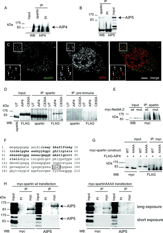 Spartin interacts with AIP4 and AIP5 ( A ) Western blotting (WB) against endogenous AIP4 detects an AIP4-sized band after immunoprecipitation (IP) of HeLa cell lysate with α-spartin, but not with pre-immune (PI) serum. ( B ) Immunoblotting against endogenous AIP5 detects an AIP5-sized band after immunoprecipitation of HeLa cell lysate with α-spartin, but not with pre-immune serum. ( C ) Endogenous spartin partially co-localizes with endogenous AIP4, in small puncta. Arrows indicate puncta showing co-localization. The inset shows a magnified image of the boxed area. Scale bar=10 μm. ( D ) Endogenous spartin was immunoprecipitated from HeLa cells transfected with FLAG-tagged wild-type AIP4 or catalytically inactive AIP4 (C803A). Immunoblotting with anti-FLAG demonstrated that wild-type and catalytically inactive AIP4 were co-immunoprecipitated with spartin. Neither spartin nor the AIP4 proteins were immunoprecipitated by pre-immune serum. UT, untransfected cells. ( E ) Endogenous spartin was immunoprecipitated from HeLa cells transfected with wild-type (wt) or catalytically inactive (C962S; mut.) Myc-tagged Nedd4.2. Immunoblotting with anti-Myc showed that the Nedd4.2 proteins had not been co-immunoprecipitated with spartin. ( F ) Sequence of the first 210 amino acids of spartin. The MIT (microtubule-interacting and transport) domain is shown in bold, the PPXY motif is boxed. ( G ) HeLa cells were transfected with FLAG-AIP4 and either wild-type Myc-tagged spartin (WT) or Myc-tagged spartin in which the PPXY motif had been mutated to AAAA. After immunoprecipitation with anti-Myc, FLAG-AIP4 co-immunoprecipitated with WT Myc–spartin, but not Myc–spartinAAAA. ( H ) HeLa cells were transfected with wild-type Myc–tagged spartin (left panels) or Myc–spartinAAAA (right panels). After immunoprecipitation with anti-Myc, endogenous AIP5 co-immunoprecipited with wild-type Myc-spartin, but not with Myc–spartinAAAA. An additional short exposure is shown so that immunoblotting resul
