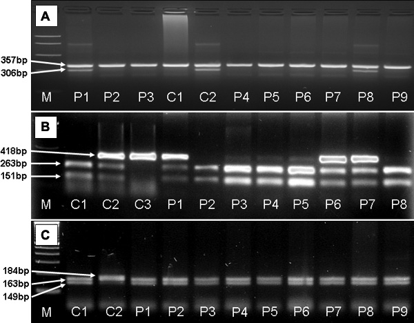 Electrophoresis of products of allele-specific PCR for N363S and PCR-RFLP of Bcl I and ER22/23EK polymorphisms. A : Allele-specific PCR reaction yielded a control fragment of 357 bp in each tube and a specific fragment of 306 bp in those tubes where the mutant allele (coding serine) was present. C1 indicates a wild-type homozygous control. C2 indicates a heterozygous control sample. P1 and P8 are patients carrying the polymorphism N363S. P2-P7 and P9 are samples of wild-type patients. A band of 357 bp served as internal control in each reaction. B : RFLP analysis using Bcl I restriction enzyme resulted in fragments of 263, 151 bp for wild-type homozygous samples (C1, P2-P5, P8), fragments of 418, 263 and 151 bp for heterozygous samples (C2, P1, P6-P7), and a 418-bp-long fragment for polymorphic homozygotes (C3). C : Analysis of ER22/23EK using Mnl I restriction enzyme resulted in fragments of 149 and 163 bp for wild-type homozygous samples (C1, P1-P9), and fragments of 163 and 184 bp for heterozygous samples (C2). Abbreviations: M=molecular weight marker, bp=base pair, C1-3=control, P1-P9=patients.