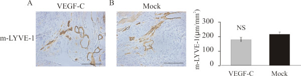 Effect of ectopic VEGF-C on lymphatic vessel density of orthotopic PC-3 tumors . M-LYVE-1-positive staining was observed primarily in the tumor periphery and in the peritumoral area (A-B). No differences were detected in the density of lymphatic vessels Bar 500 μm.