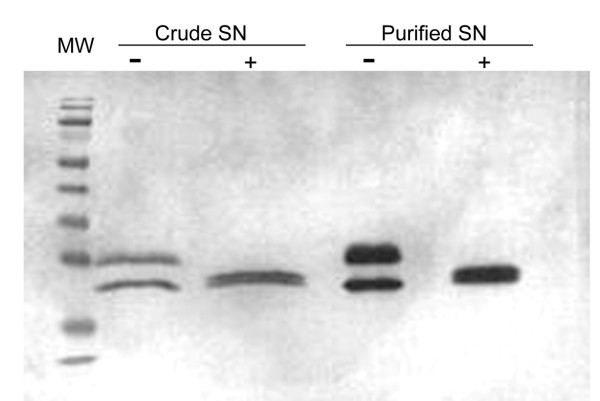 Deglycosylation of recombinant SOD by treatment with PNGase F . Crude and purified supernatant (SN) samples from the SMD1168H-pGAPZαA-SOD strain were treated without (-) or with (+) 1000 U PNGase F. After the deglycosylation treatment the samples were analyzed by SDS-PAGE and immunoblotting using myc-specific (Myc) antisera. Mw, molecular weight marker (Fermentas).
