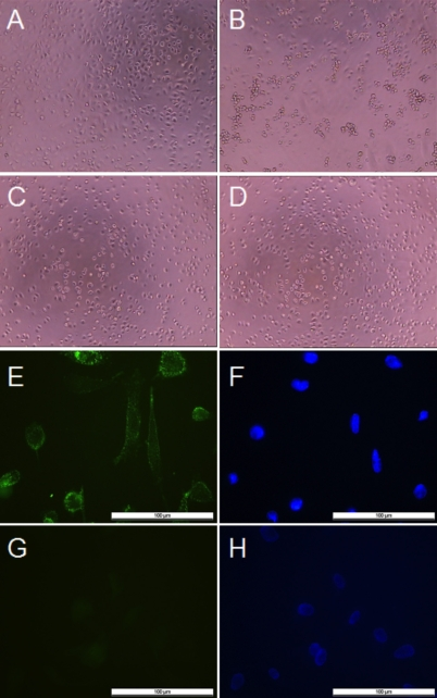 Effects of galectin-1 on the morphology of cultured human retinal pigment epithelial cells and cell surface binding of galectin-1. A-D : Human retinal pigment epithelial (RPE) cell suspensions were preincubated for 35 min without galectin-1 ( A ), or with 125 μg/ml galectin-1 ( B ), or 100 mM β-lactose before addition of 125 µg/ml galectin-1 ( C ), or 100 mM β-lactose ( D ) in the medium. RPE cells were then plated at a density of 0.5×10 4 cells per well in 96-well plates and allowed to adhere for 90 min ( A - D ). The cells were observed by light microscopy (magnification 100×). E-H : Galectin-1 is detected on the surface of human RPE cells by immunofluorescence. Cells were cultured on glass coverslips for 16 h before being treated with biotinylated galectin-1 ( E ). They were fixed, then stained with a fluorescent streptavidin conjugate. For controls ( G ), untreated cells were exposed to streptavidin conjugate alone. Nuclei were counterstained with 1 µg/ml Hoechst 33342 ( F , H ). Localization of bound galectin-1 was visualized by fluorescence microscopy at a 400x magnification. The bar represents 100 μm.
