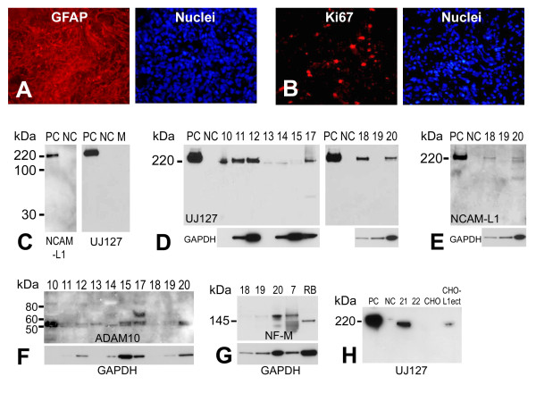 Characterization of human primary glioma surgical samples . Extensive GFAP (A, left panel) expression was detected in primary glioma surgical sample frozen sections using immunofluorescent staining with a rabbit anti-GFAP antibody. (B, left panel) Numerous dividing cells were detected in the same surgical glioma sample using an anti-Ki67 antibody. Right panels in (A) and (B) are nuclear counterstaining for GFAP and Ki67 stained sections, respectively. (C) Demonstration of specificity of anti-L1 antibodies anti-cytoplasmic polyclonal NCAM-L1 (left panel) and anti-ectodomain monoclonal UJ127 (right panel) by western blot analysis. Human L1-expressing quail QT6 cells (QT6/hFL1) were used as positive controls (PC), untransfected QT6 cells were used as negative controls (NC), and plain QT6 cell culture media (M) was used as an additional negative control. (D) L1 expression was found in human primary gliomas surgical samples (sample numbers 10-15 and 17-20) by western blot analysis using UJ127 anti-L1 antibody. Transfected QT6/hFL1 cells were used as positive control and QT6 cells were used as a negative control. Gels were loaded with 10 μg total protein and probed for GAPDH as a loading control (see text). (E) Analysis of surgical samples 18-20 using anti-L1 antibody NCAM-L1. Same blot was used as for (D, right panel, 10 μg total protein/well). GAPDH was used as a loading control. (F) Analysis of glioma surgical samples for L1 protease ADAM10, revealing that all samples were positive predominantly for active ADAM10 (approx. 55 kDa). (G) Surgical samples # 7, 18, 19, and 20 were analyzed by western blot with a rabbit anti-NF-M antibody to detect neurofilament expression. Adult rat brain (RB) lysate was used as a positive control for NF-M staining. (H) Media from surgical sample cells grown in culture were analyzed by western blot for L1. Soluble L1 was detectable in media from sample # 21. Positive controls (PC) were cell lysates from QT6/hFL1 cells, and untransfected cel