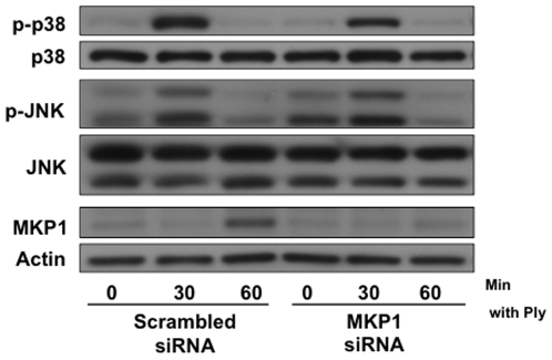 Regulation of the MAPK response to pore-formation is <t>MKP1</t> independent. (A) A549 cells were transfected with 2.5 µg of MKP1 or scrambled <t>siRNA</t> per 1×10 6 cells and stimulated 24 hrs post-transfection with 200 ng/ml of purified Ply for the indicated times. Transfection with MKP1 siRNA inhibited MKP1 expression but did not have an effect on Ply-induced MAPK phosphorylation.